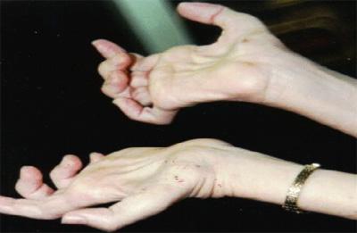 بیماری شارکو ماری توث علائم و درمان این بیماری