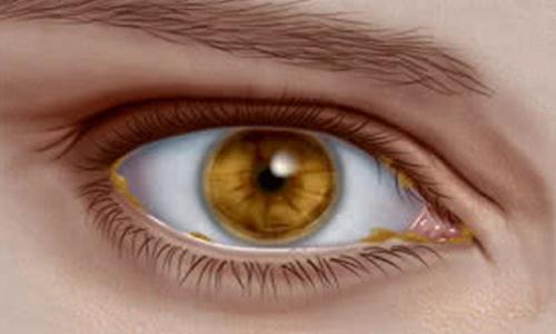 ترشحات چشم و اطلاعاتی که در مورد سلامت می دهد