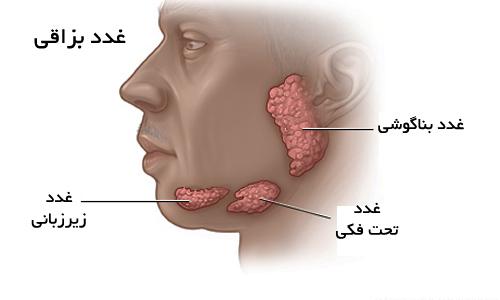 انواع بیماریهای غدد بزاقی و روش های درمانی