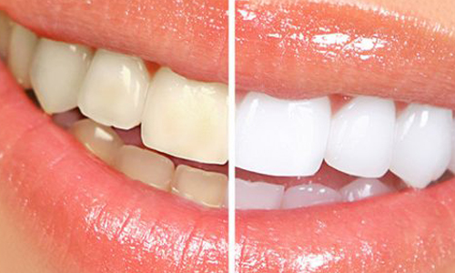 روش هایی طبیعی برای سفید کردن دندان ها