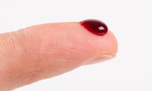 Photo of هنگامی که خون خیلی رقیق شود چه باید کرد؟