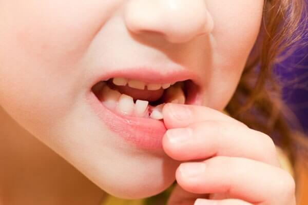 دندان شیری در چه سنی می افتد؟