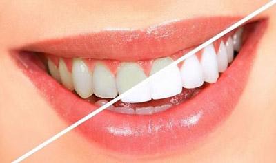 فلوئوروزیس دندانی چیست و چگونه از بین می رود؟