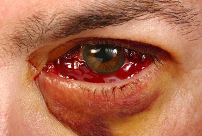 Photo of جدا شدن شبکیه چشم به چه دلیل اتفاق می افتد و چگونه درمان می شود؟