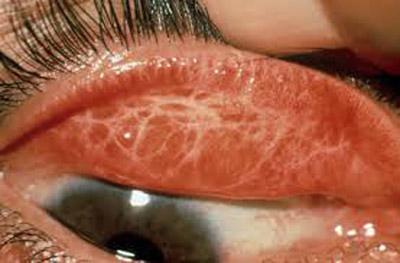 Photo of علائم و درمان بیماری تراخم چشم