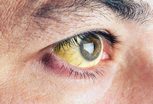 از وضعیت چشم ها وضعیت سلامتی را بفهمید