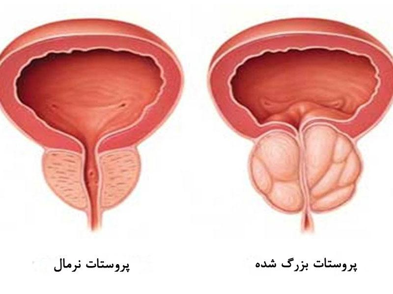 Photo of ماساژ پروستات؛ تاثیر ماساژ پروستات بر این غده و سلامت بدن