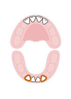 رشد دندان ها در کودکان به چه ترتیبی است؟