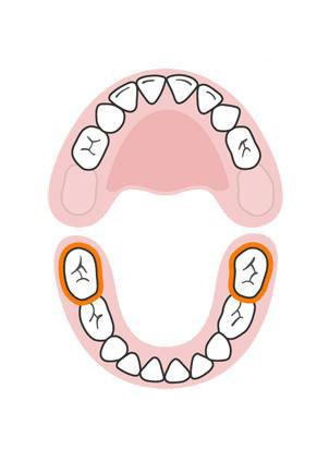 Photo of رشد دندان ها در کودکان به چه ترتیبی است؟