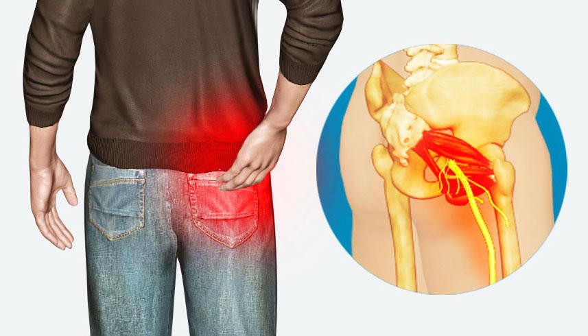 11 روش برای کاهش درد سیاتیک و کمردرد و درد پا