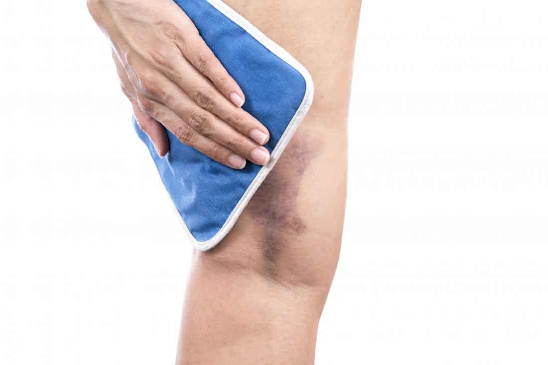 دلیل خون مردگی و خونریزی زیر پوست چیست و چگونه درمان می شود؟