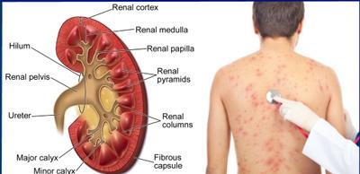 علائم بیماری مزمن کلیه و نشانه های آن