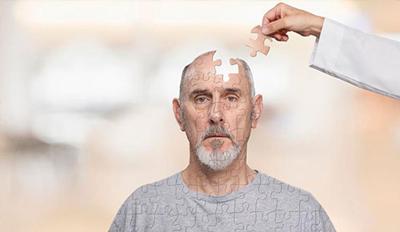 Photo of نحوه جلوگیری از مرگ تدریجی سلول های مغز