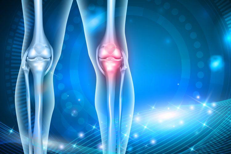 اطلاعاتی در مورد استئوآرتریت و تخریب عضلات