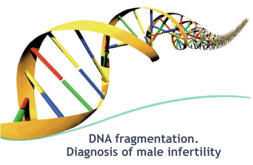 Photo of انجام آزمایش DFI برای بررسی ناباروری در مردان