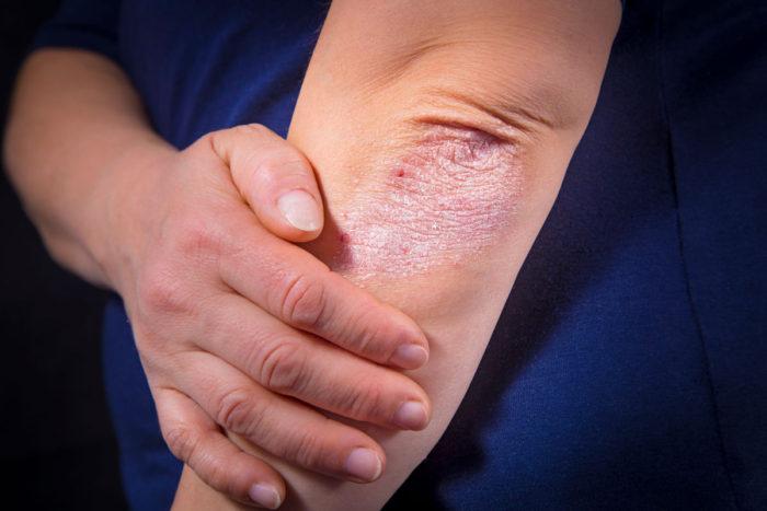 روش های مراقبت از پوست مبتلا به پسوریازیس