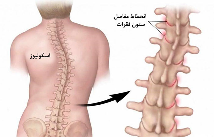 Photo of اسکولیوز | دلیل انحراف ستون فقرات و درمان این مشکل