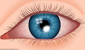 Photo of زخم قرنیه | درمان زخم فرنیه و تسکین درد چشم
