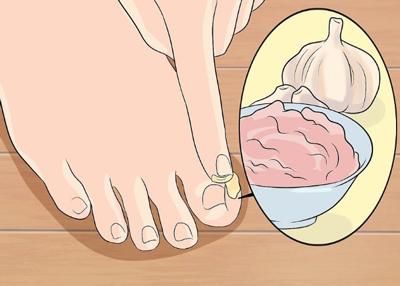 روش های درمان عفونت انگشتان پا