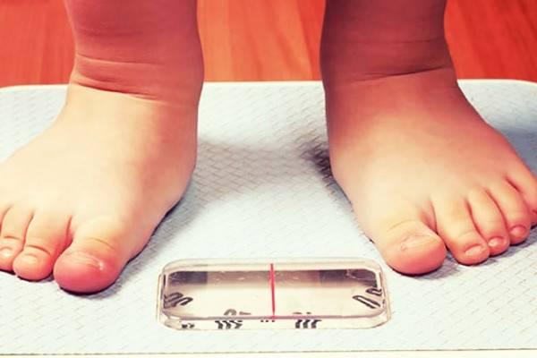 اضافه وزن کودک