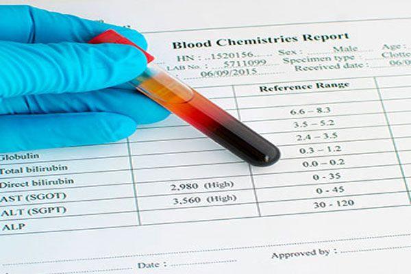 تفسیر تست SGOT یا AST در آزمایش خون و میزان نرمال آن