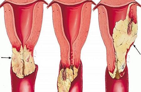 سرطان سرویکس یا سرطان دهانه رحم