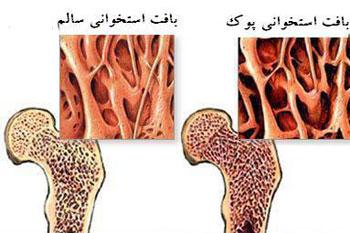 علایم هشداردهنده کمبود منیزیم