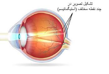لنز طبی چیست