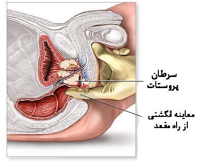 آزمایش پروستات (PSA)