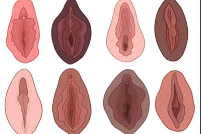 شکل واژن