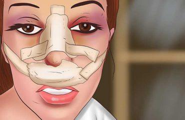 آمیزش و رابطه جنسی پس از جراحی بینی