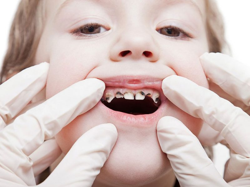 آیا قطره آهن می تواند باعث پوسیدگی دندان ها شود و برای دندان مضر است؟