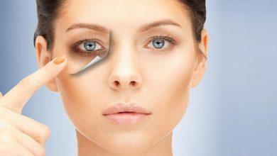Photo of روش درمان کبودی و ورم دور چشم و درمان آن