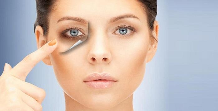 روش درمان کبودی و ورم دور چشم و درمان آن