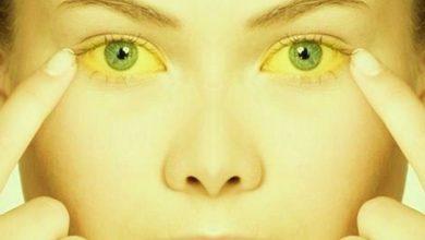 Photo of دلیل زردی پوست چیست و چه زمانی این زرد شدن خطرناک می شود؟