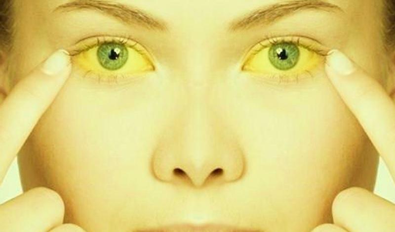 دلیل زردی پوست