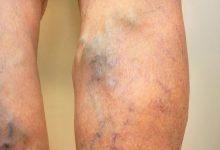 Photo of دلیل لخته شدن خون در پا چیست و چگونه درمان می شود؟