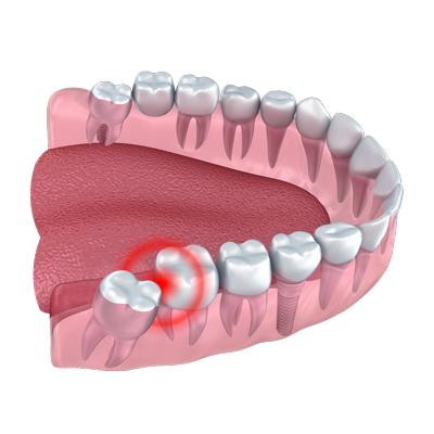 مشکلات دندان عقل و عوارضی که برای لثه ایجاد می کند