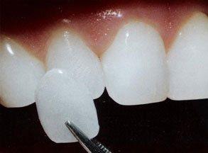 Photo of لمینت دندان چیست