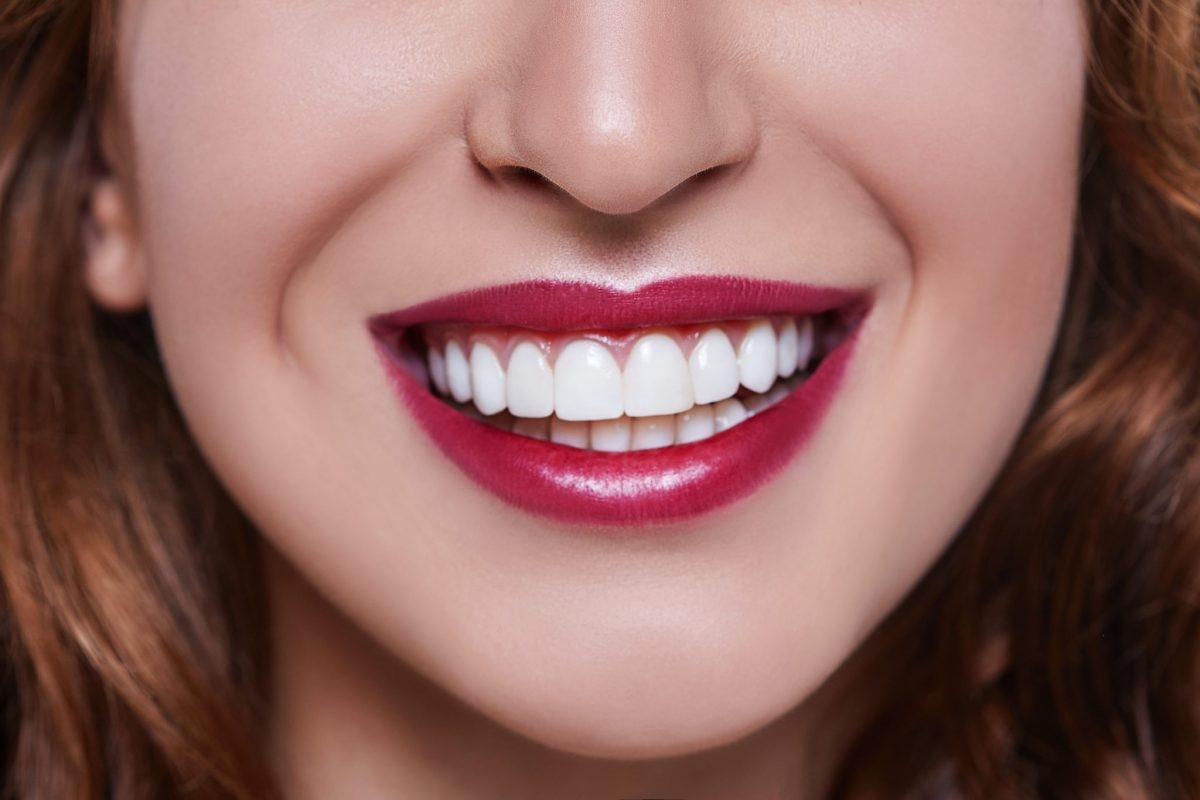 نصب ونیر دندان