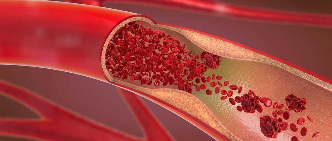 از کجا بدانیم کم خونی داریم؟