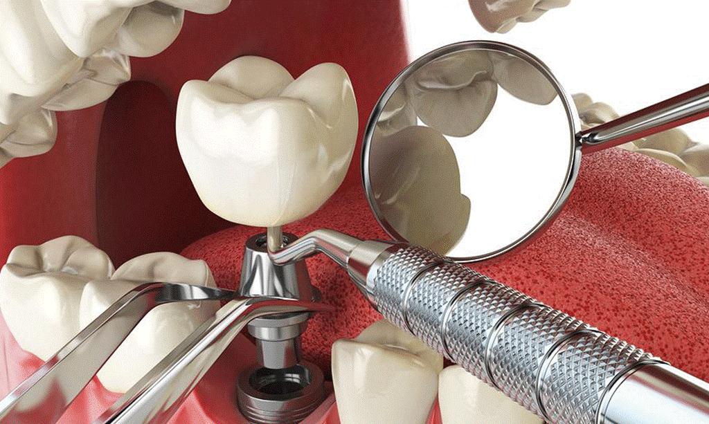 آیا می خواهید درباره ایمپلنت دیجیتال ، جدیدترین تکنولوزی کاشت دندان بدانید ؟